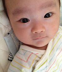 未熟児貧血