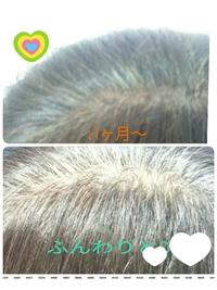 頭皮の状態や、抜毛、髪の痛みも気になって白髪をヘナ、ハーブカラーに岡崎市から 2018/03/15 21:26:01