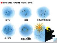 飛蚊症の検査へ・・・(後編)