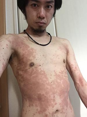 謎の肌荒れ・湿疹対策でホメオパシー初体験記 レメディー「かんじん秘蔵セット」を飲んだらトイレが詰まった件w