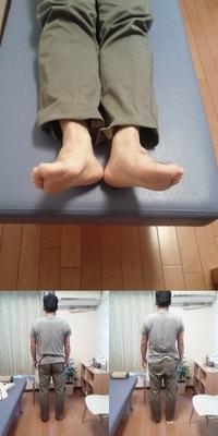 当店の検査の流れ【脚の長さ】